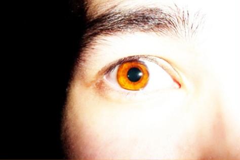 eye scared